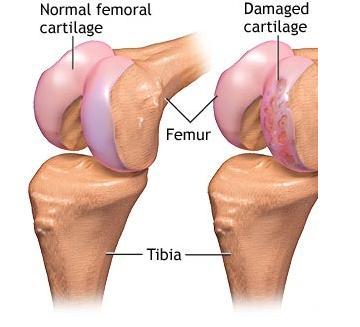 osteoarthritis cartilage regeneration