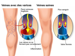 varices-animation